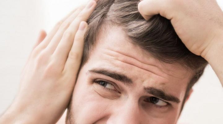 Выпавшие после мытья пару волосинок — не облысение!