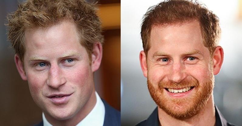 И если в 30-40 лет вы выглядите как вечный подросток, борода придаст вам мужественности. Чтобы убедиться в этом, посмотрите на принца Гарри