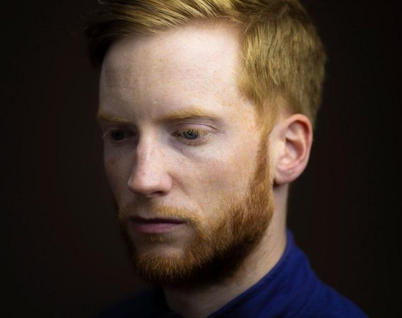 Шотландский фотограф Киран Доддс на протяжении 7 лет делал портреты рыжих людей. Он хотел показать, что люди с цветом волос, который нередко становится поводом для шуток в школе, не отличаются от других