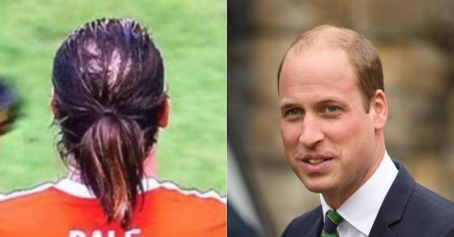 Как вы догадались, у валлийского футболиста — «озеро в лесу», а у наследника британской короны — «лес у озера». Правда, по слухам, Гарет Бэйл сделал пересадку волос